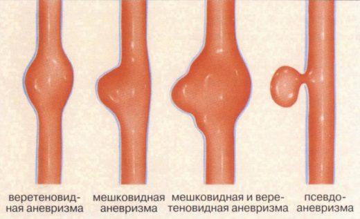 Классификация аневризм аорты