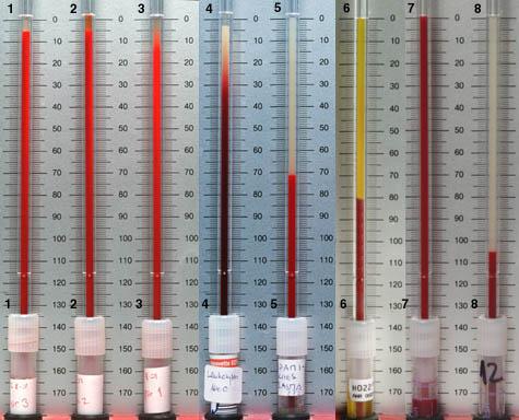 Аппарат для определения скорости оседания эритроцитов