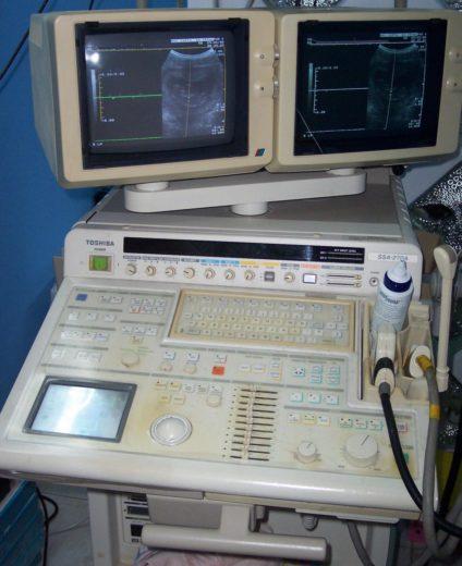 Аппарат сонографии