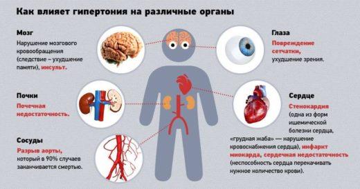 Артериальная гипертония (схема)
