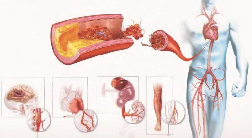 Атеросклероз (схема)