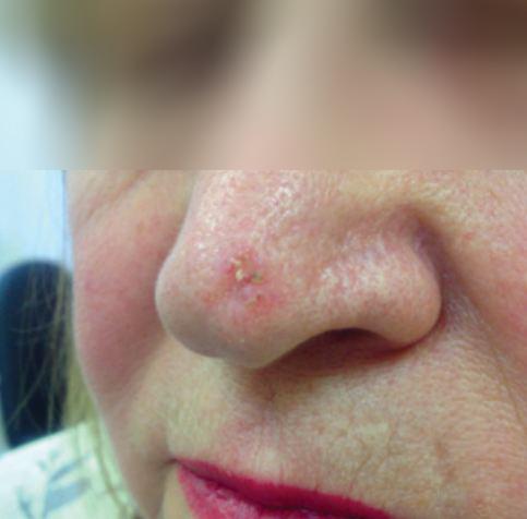базалиома носа начальная стадия фото