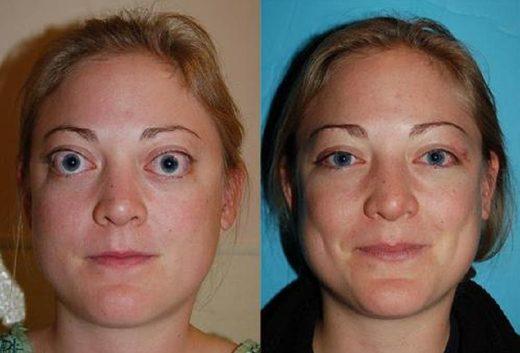 Женщина до и после лечения базедовой болезни