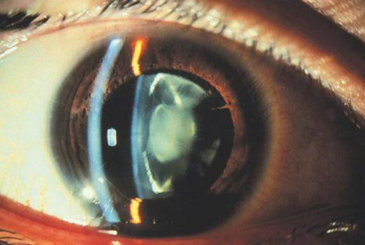 Биомикроскопия глаза с мутным хрусталиком