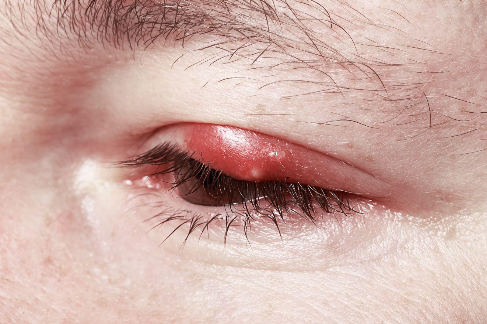 Инструкция по лечению бельмо в глазу