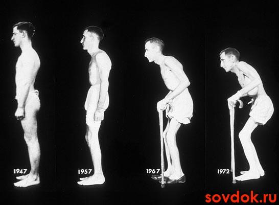 Спондилоартропатии серонегативного типа: диагностика и лечение ...