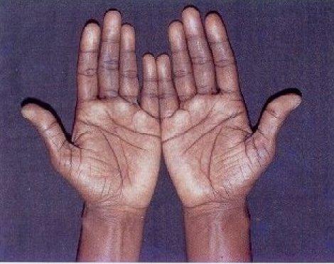 Бронзовый оттенок кожи при гипокортицизме
