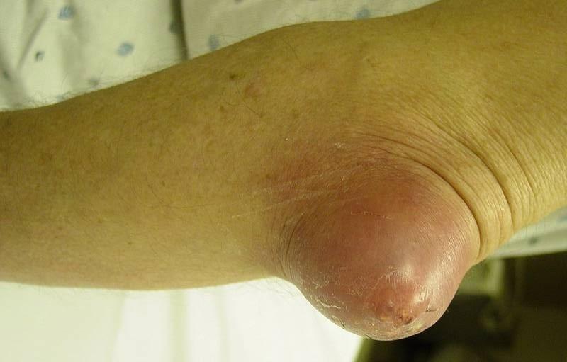 Бурсит локоть лечение в домашних условиях 943
