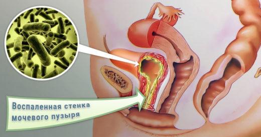 Бактерии, вызывающие геморрагический цистит