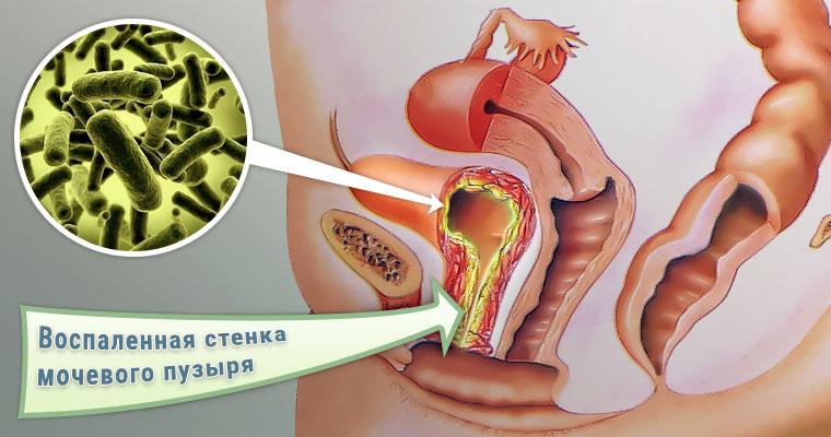Цистит с кровью в моче при мочеиспускании причины симптомы и признаки лечение