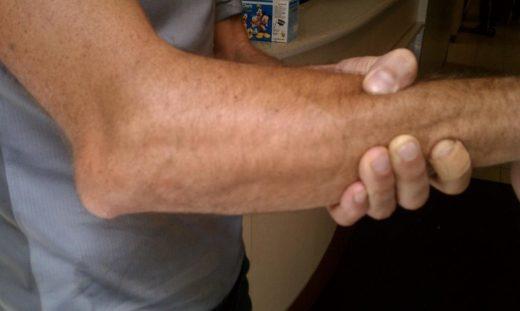 Деформация руки при заднем вывихе предплечья