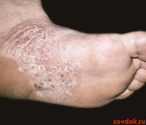 дерматоз стопы
