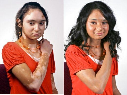Девушка с витилиго до и после использования косметики