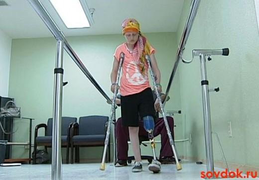 девушка с протезом на костылях