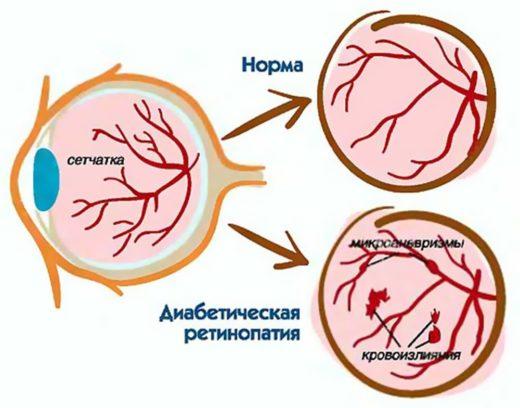 схема диабетической ангиопатии