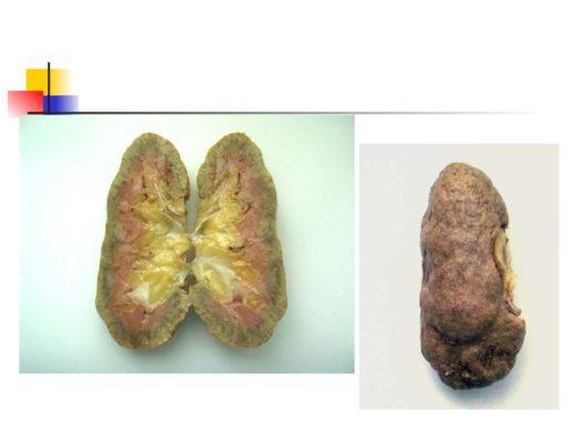Диабетический нефросклероз