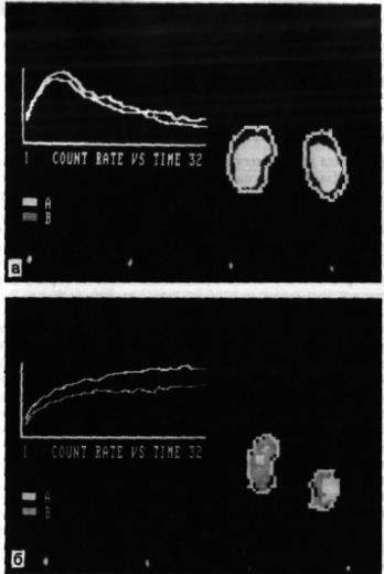 Динамическая нефросцинтиграмма при нефроптозе