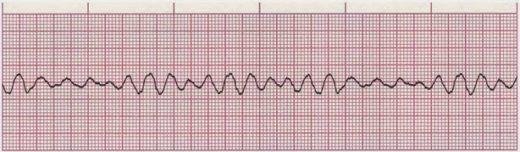 ЭКГ-изображение фибрилляции желудочков
