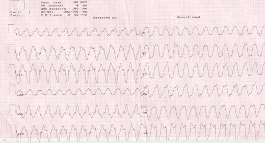 ЭКГ-картина желудочковой тахикардии