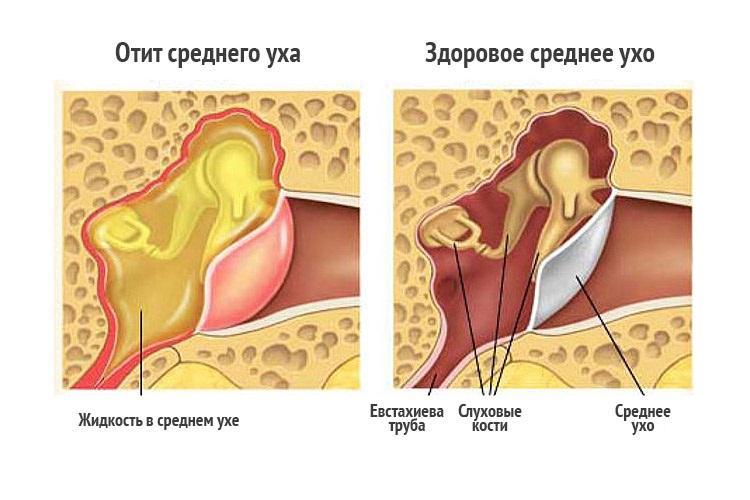 Болит ухо попала вода что делать в домашних условиях 752