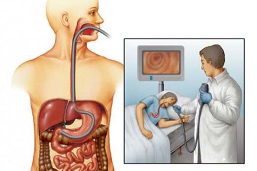 схема эндоскопическогоисследования