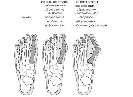Этапы деформации стопы