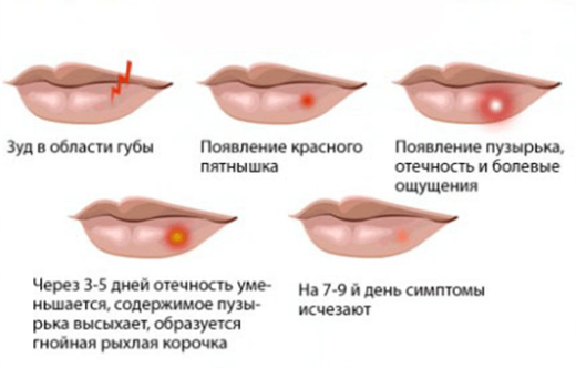 Этапы эволюции пузырьковой сыпи при герпесе