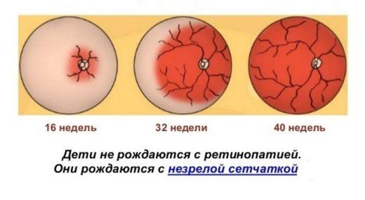 Этапы васкуляризации сетчатки плода