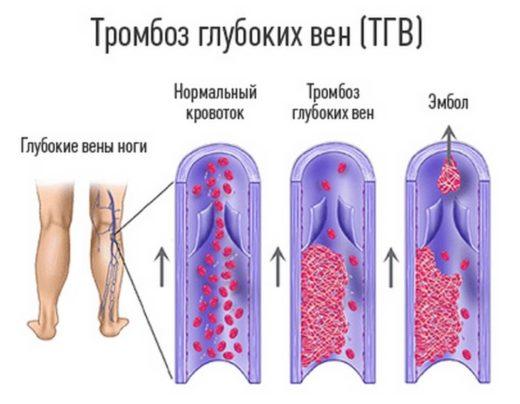 Причины ПТФС