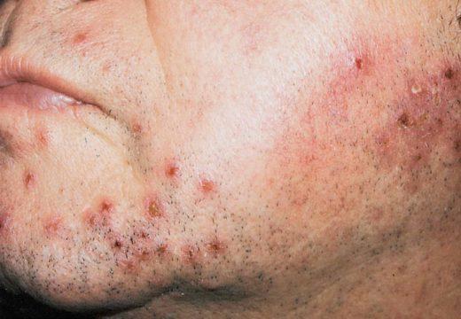 Фолликулит после бритья