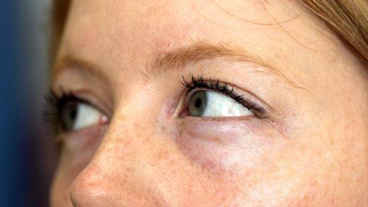Фрагмент лица девушки с отёками под глазами