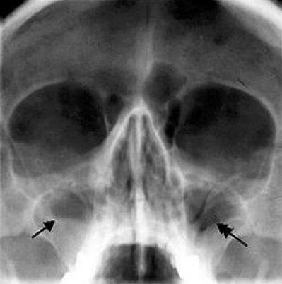 рентген фото гайморит