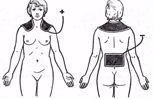 Физиотерапия при аменорее