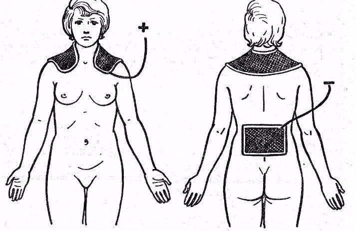 Электрофорез воротниковой зоны при остеохондрозе