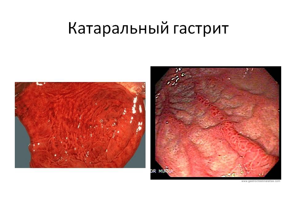 Симптомы, признаки и диагностика язвы желудка + видео