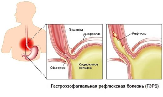 Гастроэзофагеальный рефлюкс (схема)