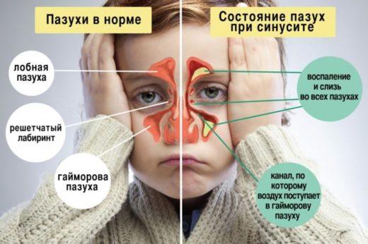 Схема состояния придаточных пазух в норме и во время синусита