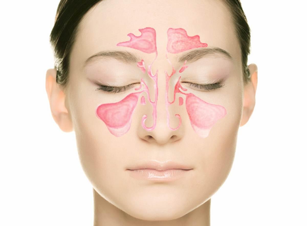 Одонтогенный гайморит — причины возникновения, симптомы и тактика лечения болезни