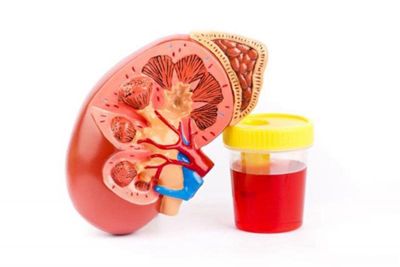 Гематурия у женщин: что делать при обнаружении крови в моче