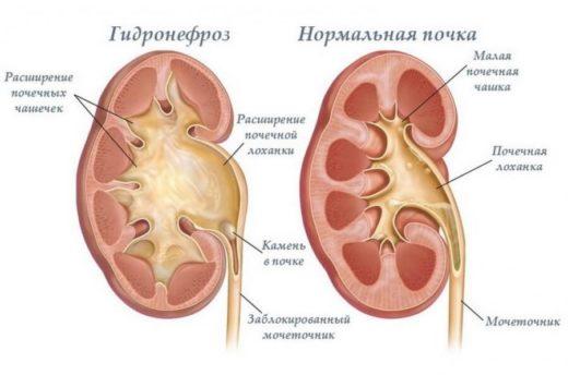 Гидронефроз и здоровая почка (схема)