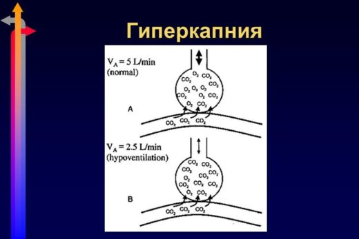 Гиперкапния