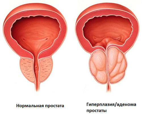 Гиперплазия ткани простаты