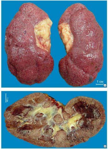 Гипертонический нефросклероз