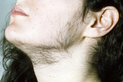 Повышенное оволосение на лице и шее