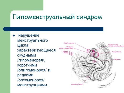 Гипоменструальный синдром