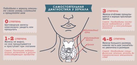 Памятка по диагностике гипотиреоза