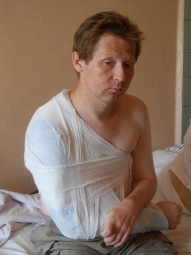 Мужчина с гипсовой повязкой на руке