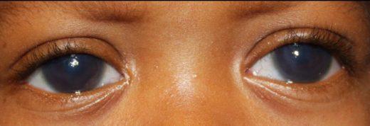 Глаукома у ребёнка