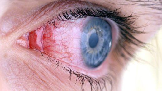 Глаз с признаками воспаления конъюнктивы