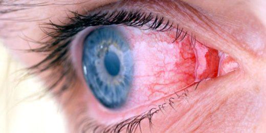 Глаз с воспалённой конъюнктивой